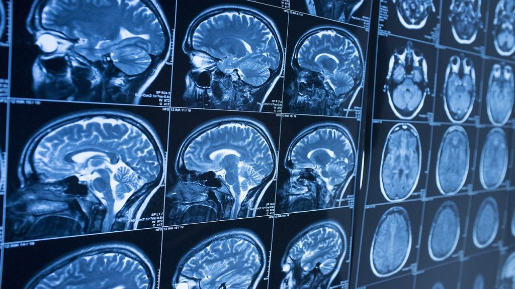 Studi: Pemindaian otak pasien coronavirus menunjukkan hilangnya materi abu-abu 'signifikan' dari waktu ke waktu