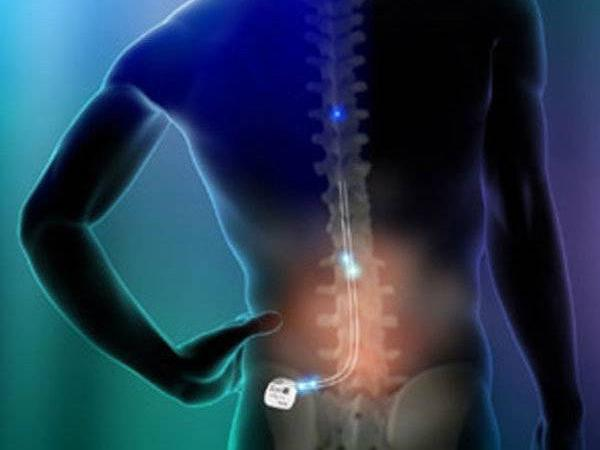 Spinal Cord Stimulation (Scs) Devices